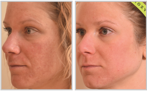 facial rejuvenation by laser skin resurfacing