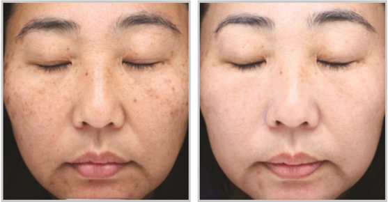 laser skin resurfacing for facial rejuvenation